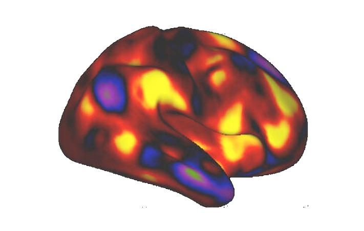 不同nifti成像数据间IJK坐标的对齐